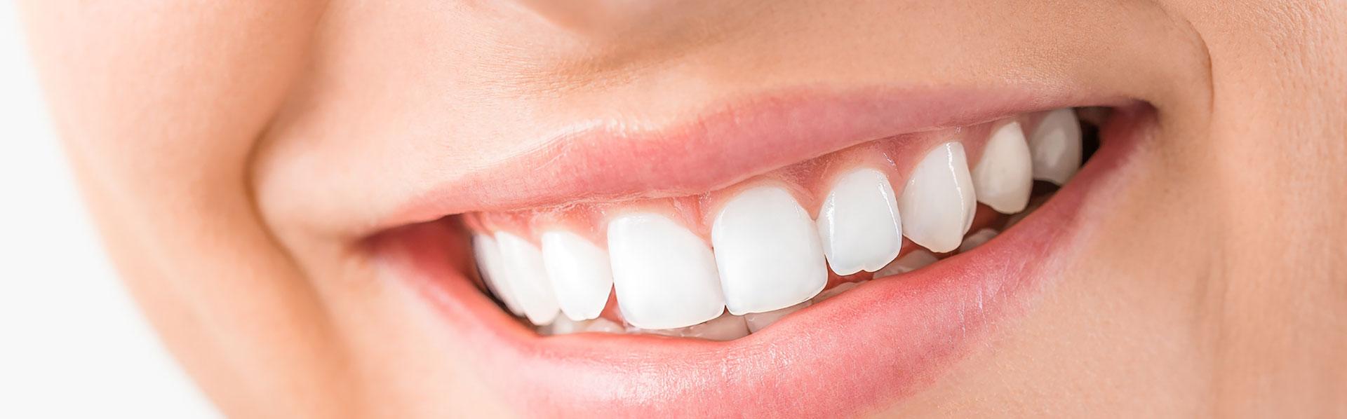 Schöne Zähne dank Zahnpflege und Kontrolle